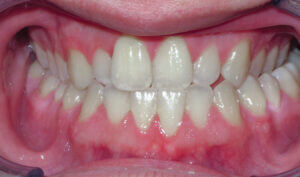 Before: Patient with crossbite and underbite tendency