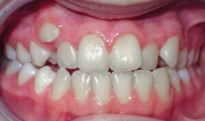 Before: Patient with an anterior crossbite, crowding and underbite tendency