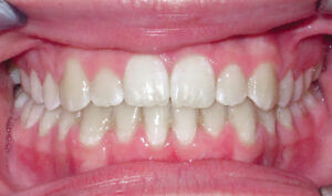 After: Patient with an underbite, crossbite and crowding