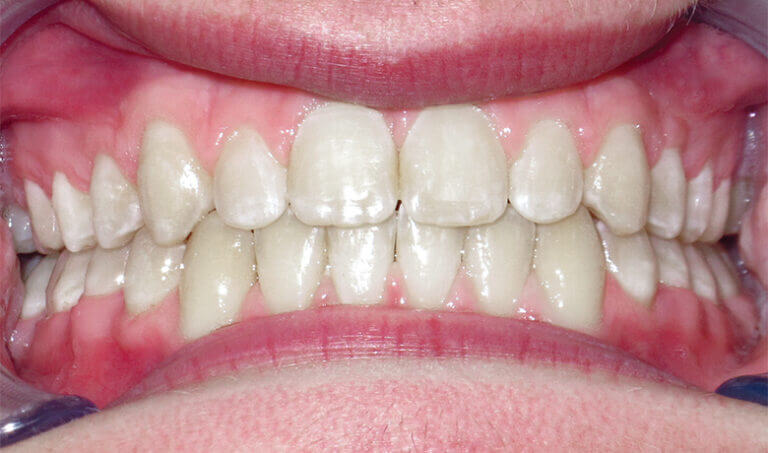 After Patient with an overbite, spacing and protrusion