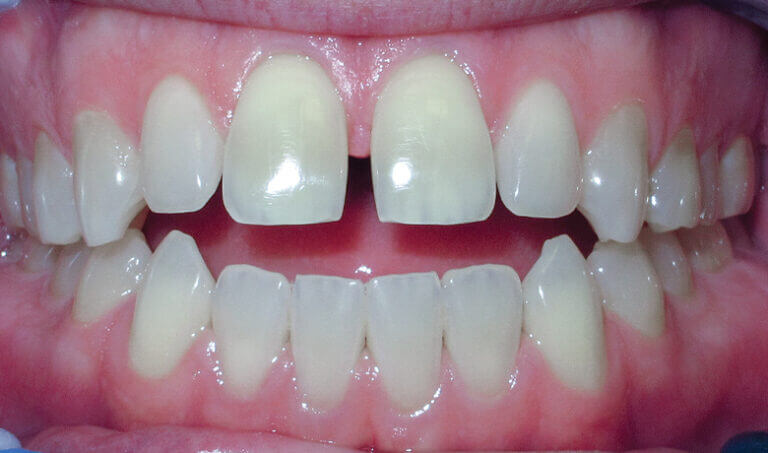 After Patient with spacing and an anterior openbite