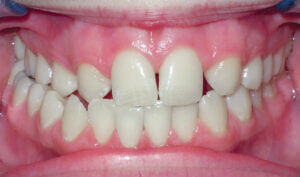 Before: Patient with a crossbite