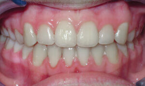 After: Patient with an anterior crossbite, crowding and underbite tendency