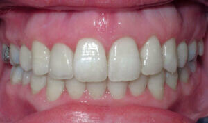After: Patient with a crossbite, openbite and crowding